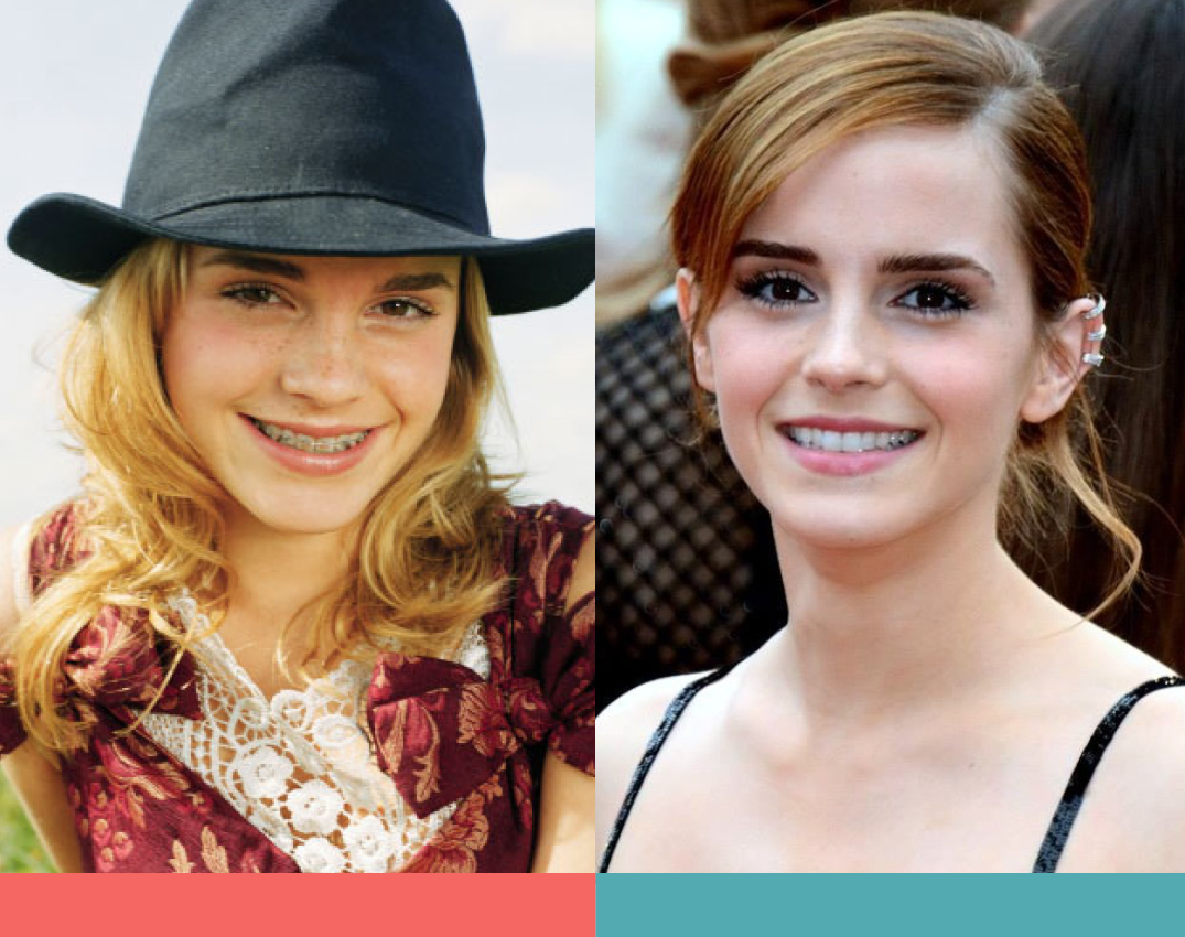 Braces before and after photos of Emma Watson