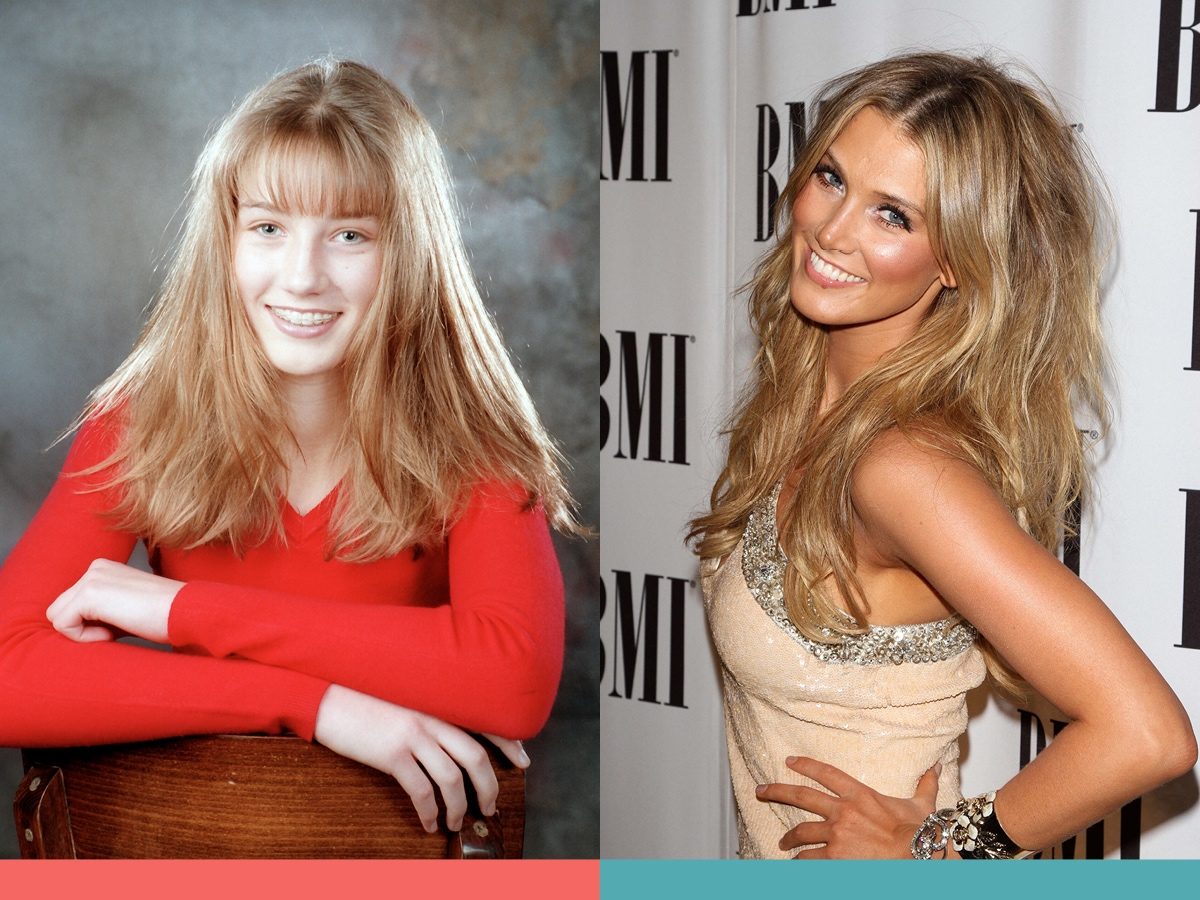 : Delta Goodrem's before and after braces photos