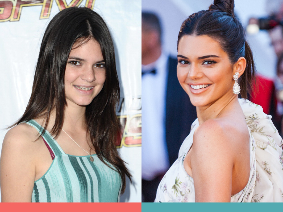 Before and after photos of Kendall Jenner wearing braces