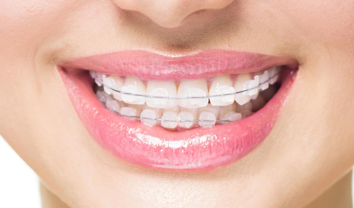 Ceramic Braces For Adults 39