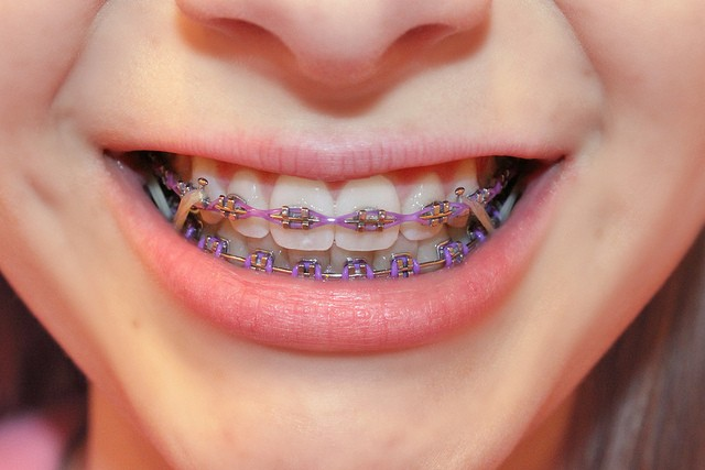 How Elastics Rubber Bands Should Be Used In Orthodontics Australian Society Of Orthodontists